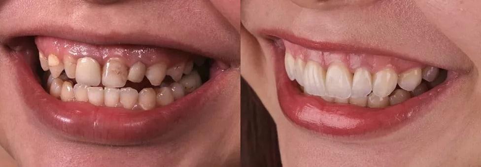 transforma+ºao-sorriso-5