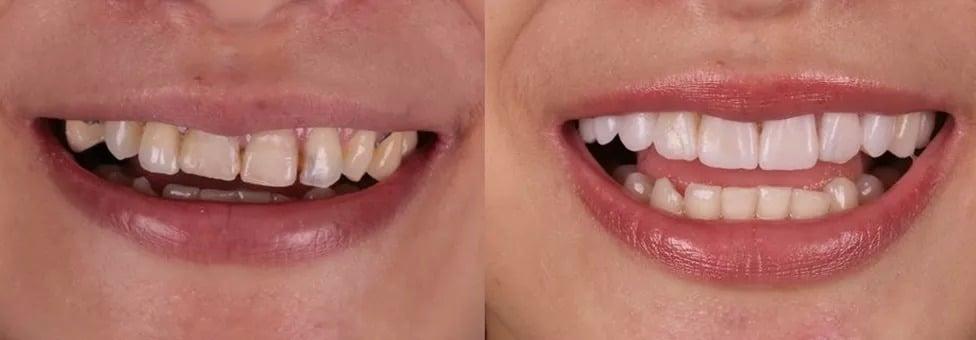 transforma+ºao-sorriso-7